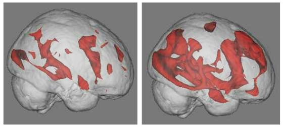 Scan of the active areas of the brain